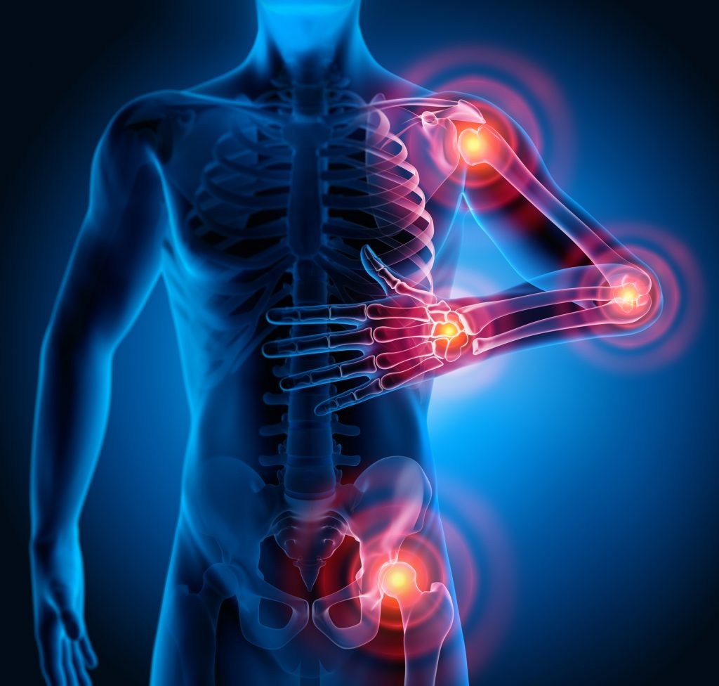 joint pain physical therapy pembroke pines